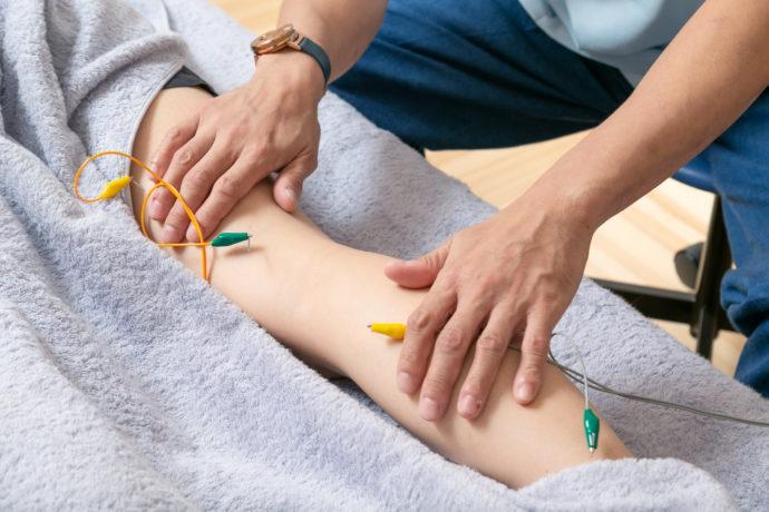 パルス刺鍼の施術