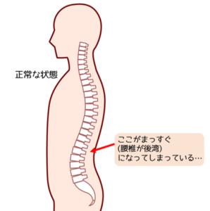 腰椎の後湾