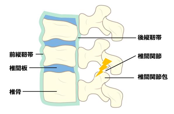 椎間関節 痛む場所 空鍼癒院 烏丸 鍼灸院 四条 五条 腰痛