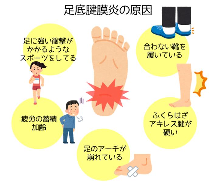 足底腱膜炎の原因 烏丸 鍼灸院